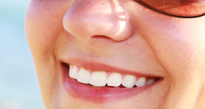woman smiling after a root canal